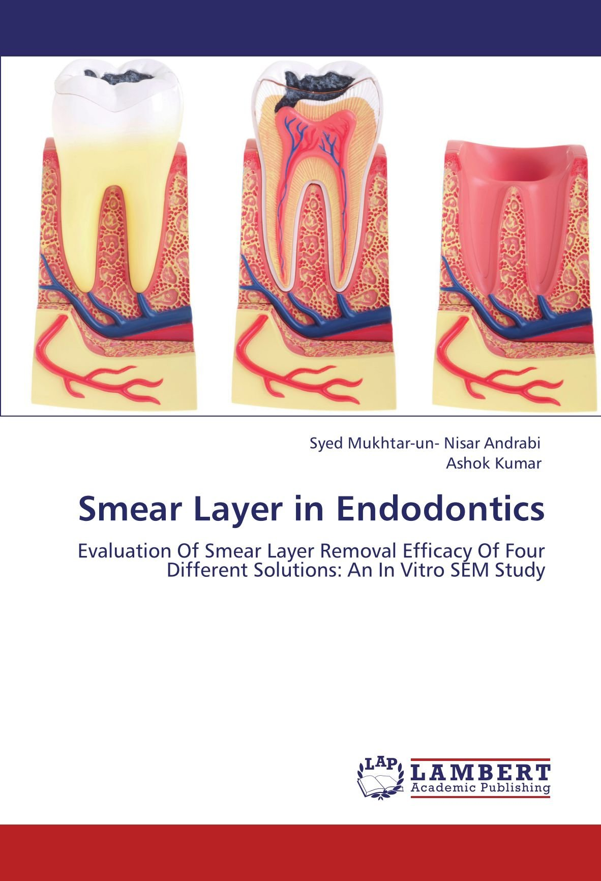 Smear Layer in Endodontics: Evaluation Of Smear Layer Removal Efficacy Of Four Different Solutions: An In Vitro SEM Study