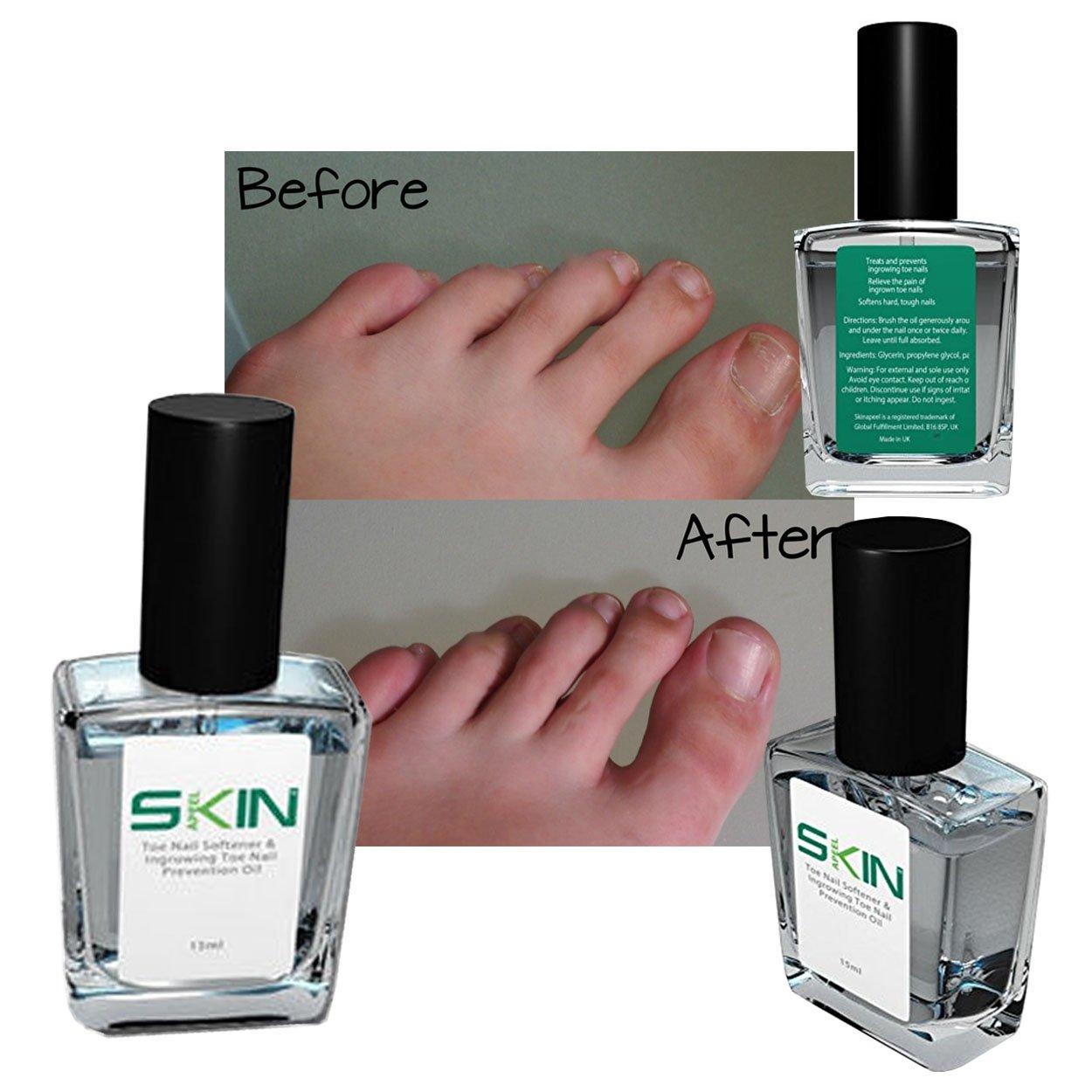 Amazon.com : Skinapeel Toe Nail Softener & Ingrowing Toenail ...
