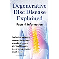 Degenerative Disc Disease Explained. Including treatment, surgery, symptoms, exercises, causes, physical therapy, neck, back, pain, and much more! Facts & Information