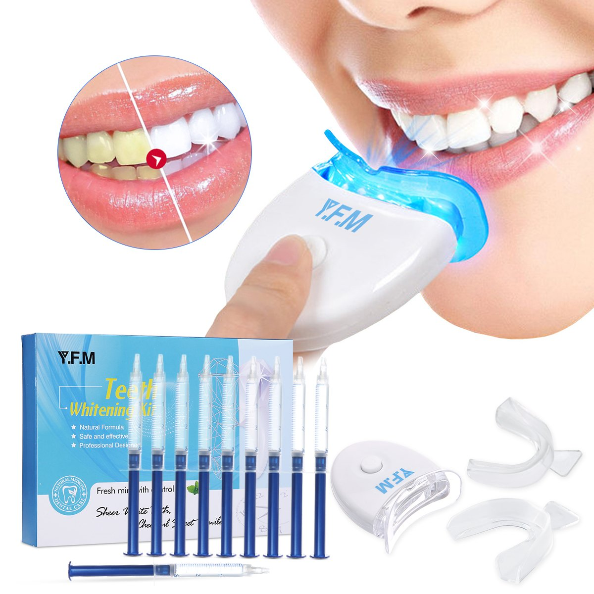 Teeth Whitening, Y.F.M Teeth Whitening Kit with LED Light, Natural Peroxide Gel, Professional Dental Whitener, Home Teeth Whitener System: 10 X 5ml Gel Syringes, Custom Trays - Fast Results