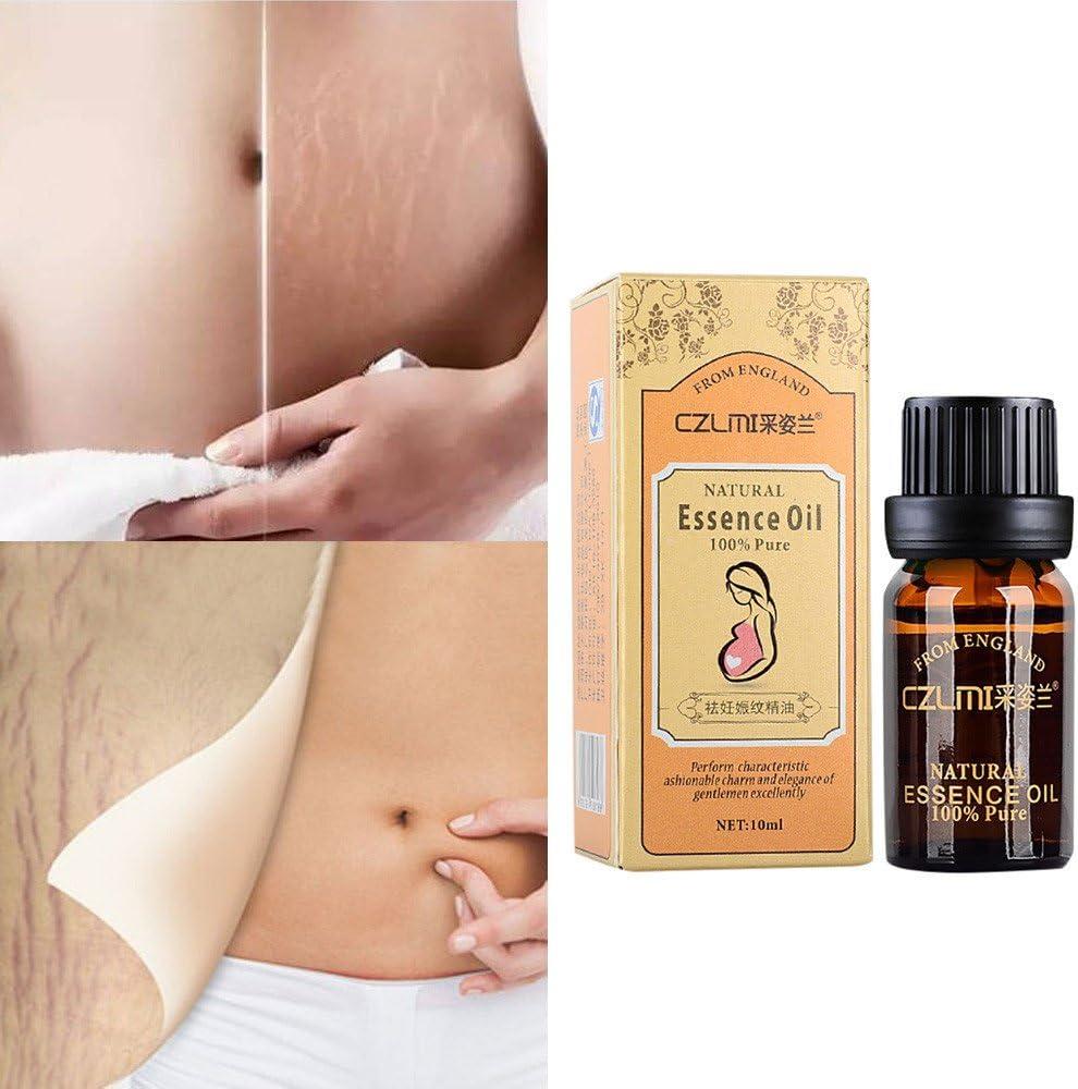ursing aceite esencial de dilatación Embarazo Reparación rugosa ...
