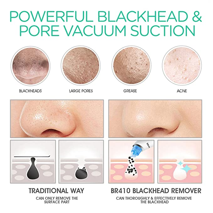 VOYOR Blackhead Remover Vacuum Suction Facial Pore Cleaner Electric Acne  Comedone Extractor Kit with 4 Microcrystalline Head for Women and Men Black