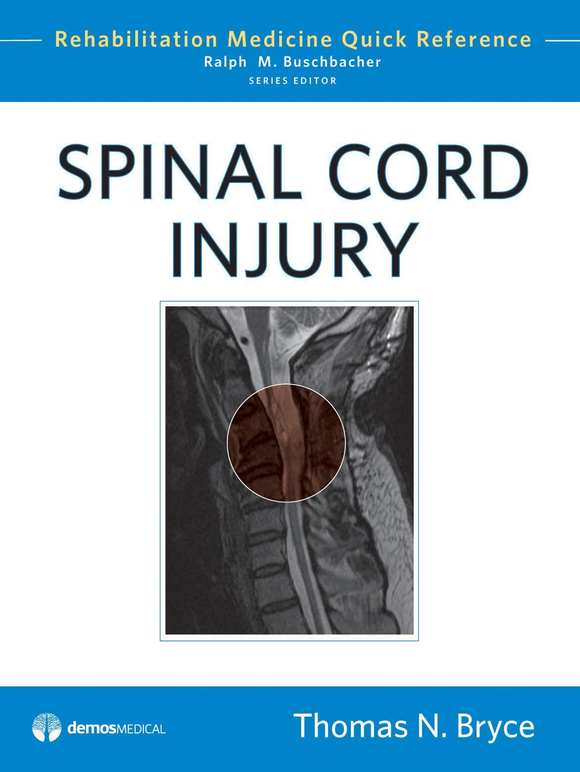 Spinal Cord Injury (Rehabilitation Medicine Quick Reference