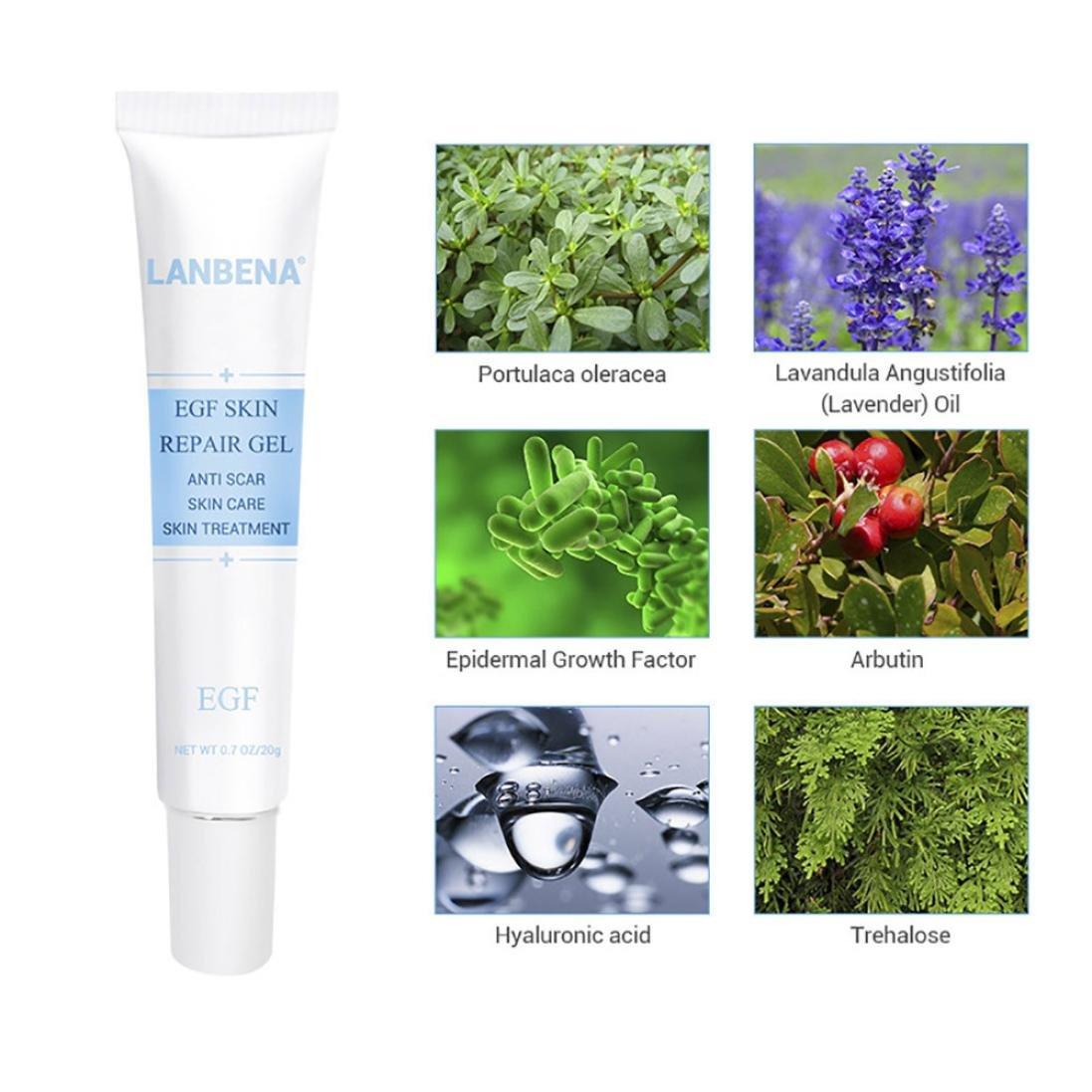 Removing Scar Ointment - Fheaven Acne Scar Removal Cream Skin Repair Face Cream Acne Spot Treatment 30ml by Fheaven (Image #6)