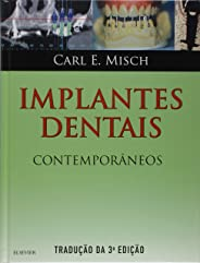 Implantes dentais contemporâneos