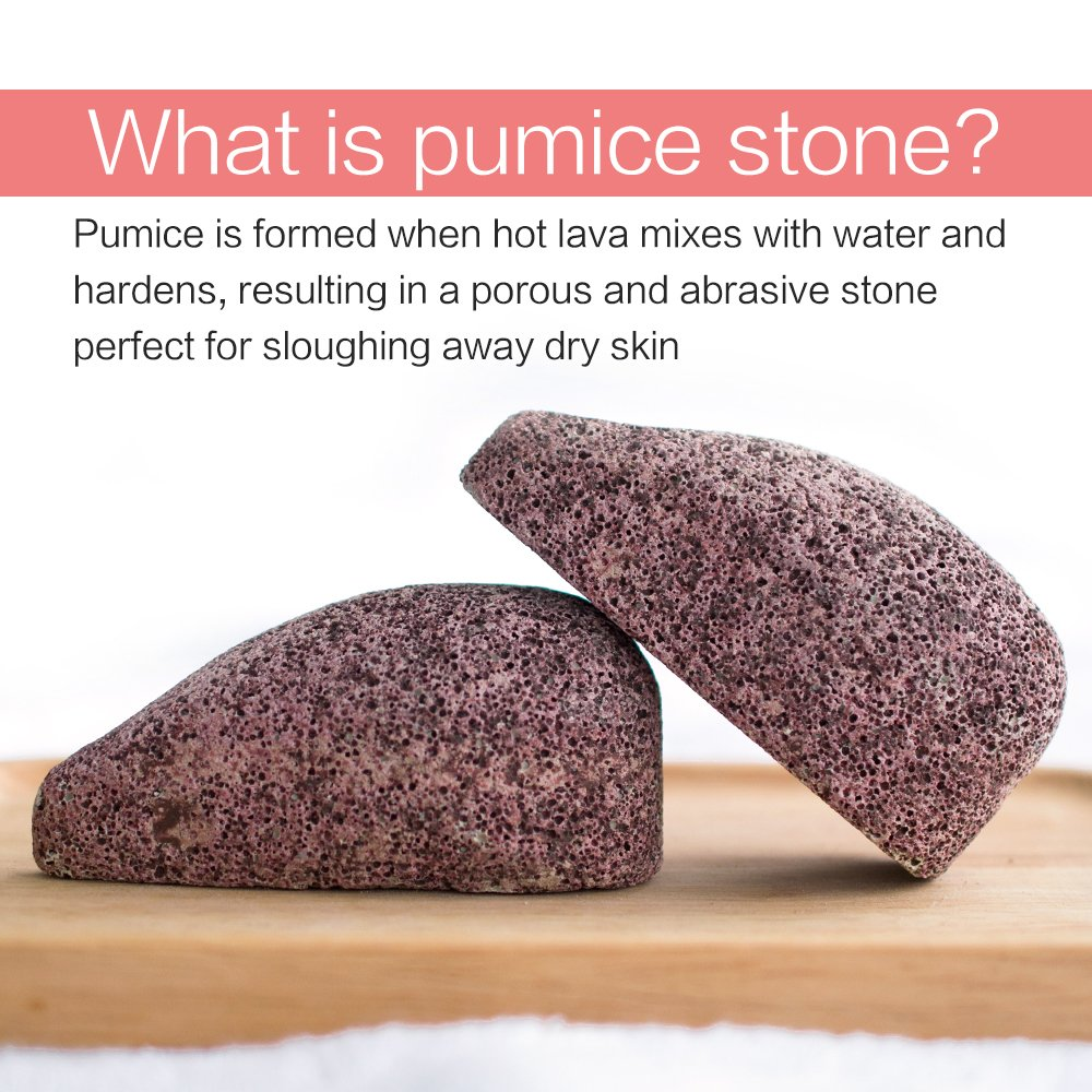 2 Pack Drops Shape Pumice Stone, Horsky Earth Lava SPA Soft Healthy Foot Callus Remover for Dry Hard Dead Skin Cracked Heel in Feet and Hands Skin Exfoliator Scrubber