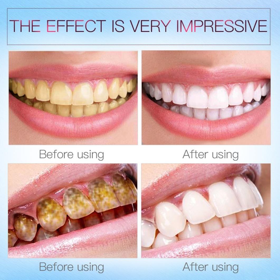 Advanced Teeth Whitening Pens – Hydrogen Peroxide Treatment with Vanilla  Mint Flavor