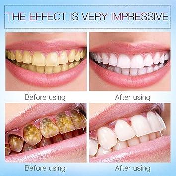 Amazon Com Advanced Teeth Whitening Pens Hydrogen Peroxide Treatment With Vanilla Mint Flavor Beauty