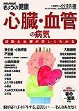 心臓・血管の病気 診断と治療が詳しくわかる (別冊NHKきょうの健康)