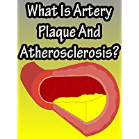 What Is Artery Plaque And Atherosclerosis?