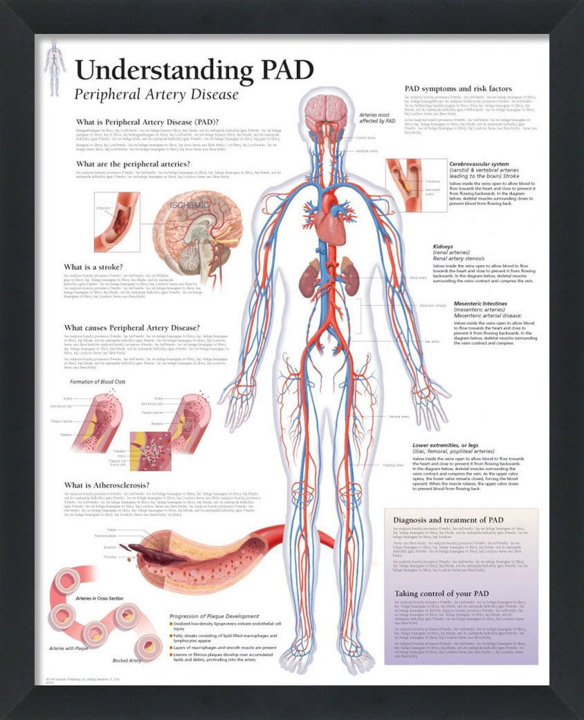 Amazon.com: Understanding PAD Peripheral Artery Disease Framed ...