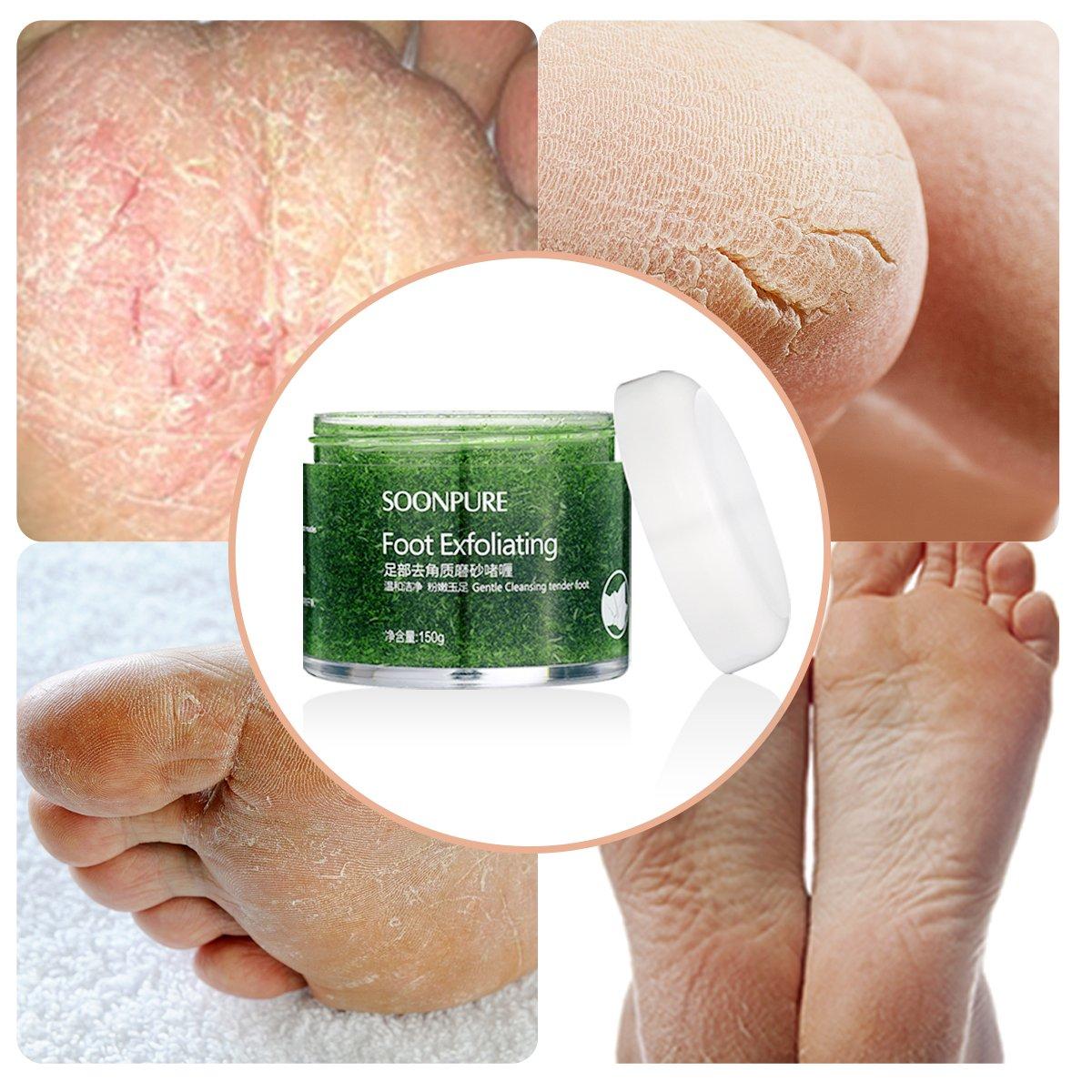 Exfoliating Foot, cura della pelle crema idratante, piede, piede callo remover-natural esfoliante pelle secca Remover ammorbidisce per spessore Cracked Rough Dead Dry Heel piedi con naturale Phytoextraction VERDOLCE