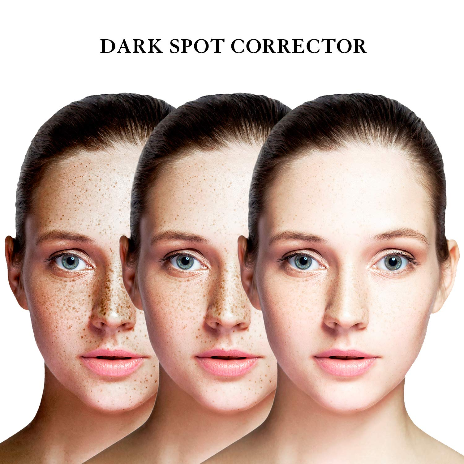 EnaSkin Dark Spot Corrector Remover for Face and BodyFormulated with Advanced Ingredient