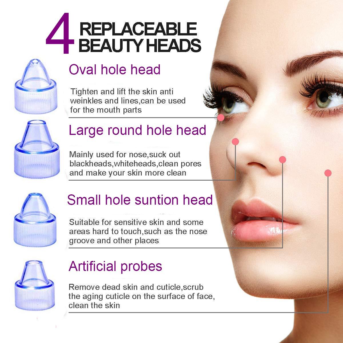 Blackhead Remover, KEIWUN Blackhead Vacuum Removal, Skin Facial Pore  Cleaner, Electric Acne