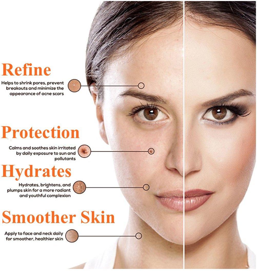 Vitamin C Serum für das Gesicht - Riesig 60ml Flasche - Beste Natürliche Formel mit Klinische Stärke von reines Vitamin C, Hyaluronsäure, Vitamin E & Bio-Jojobaöl - Für Alle Hauttypen