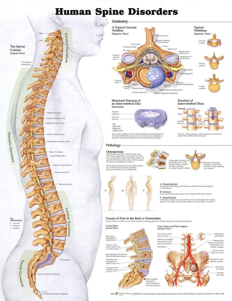 Human Spine Disorders Anatomical Chart Poster Discount 9970PL1.5