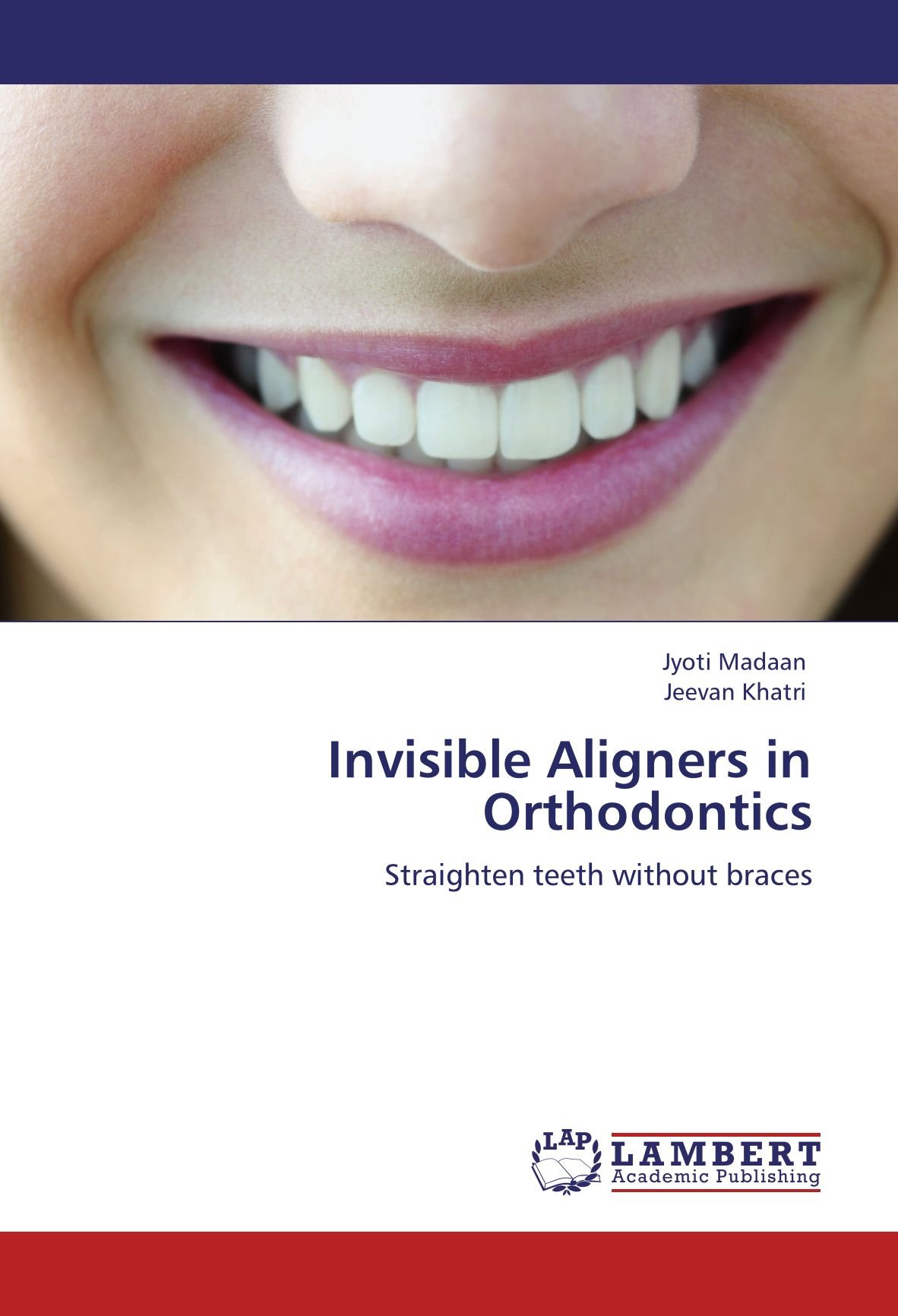 Invisible Aligners in Orthodontics: Straighten teeth without