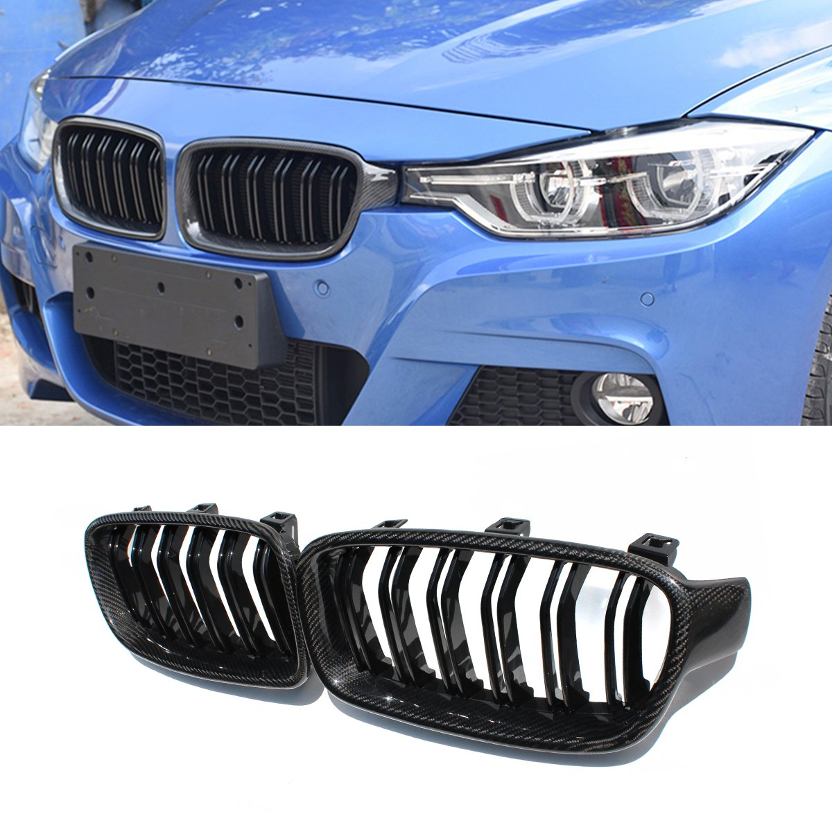 F30 Grille,Carbon Fiber Front Replacement Kidney Grill for 3 Series F30 F31 Gloss Black