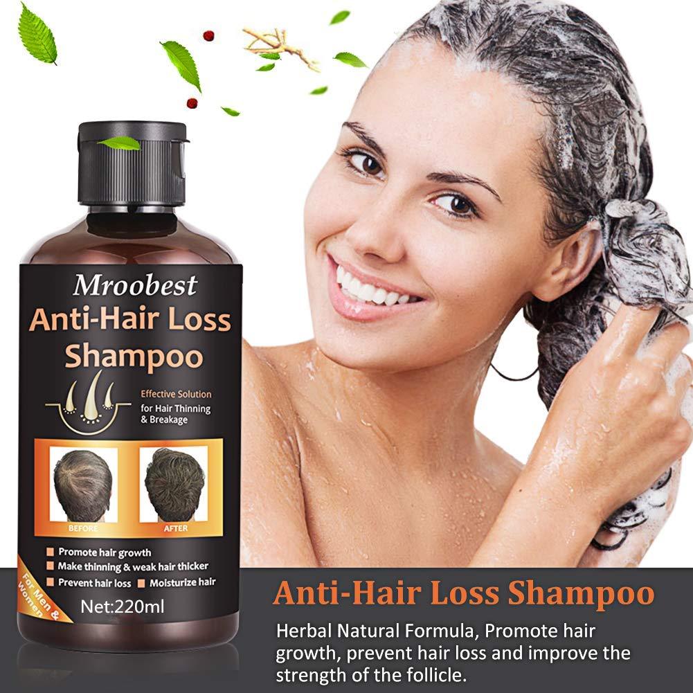 Anti-Hair Loss Shampoo, Hair Regrowth Shampoo, Natural Old Ginger Hair Care Shampoo Effective Solution for Hair Thinning & Breakage - Organic Hair ...