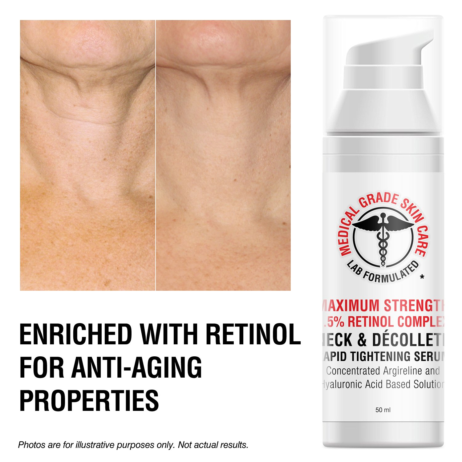 Neck & Décolleté Tightening Serum   Best Anti-Aging Firming Neck Cream Made With Maximum Strength 2.5% Retinol Complex   Concentrated With Argireline and Hyaluronic Acid by SkinPro (Image #3)
