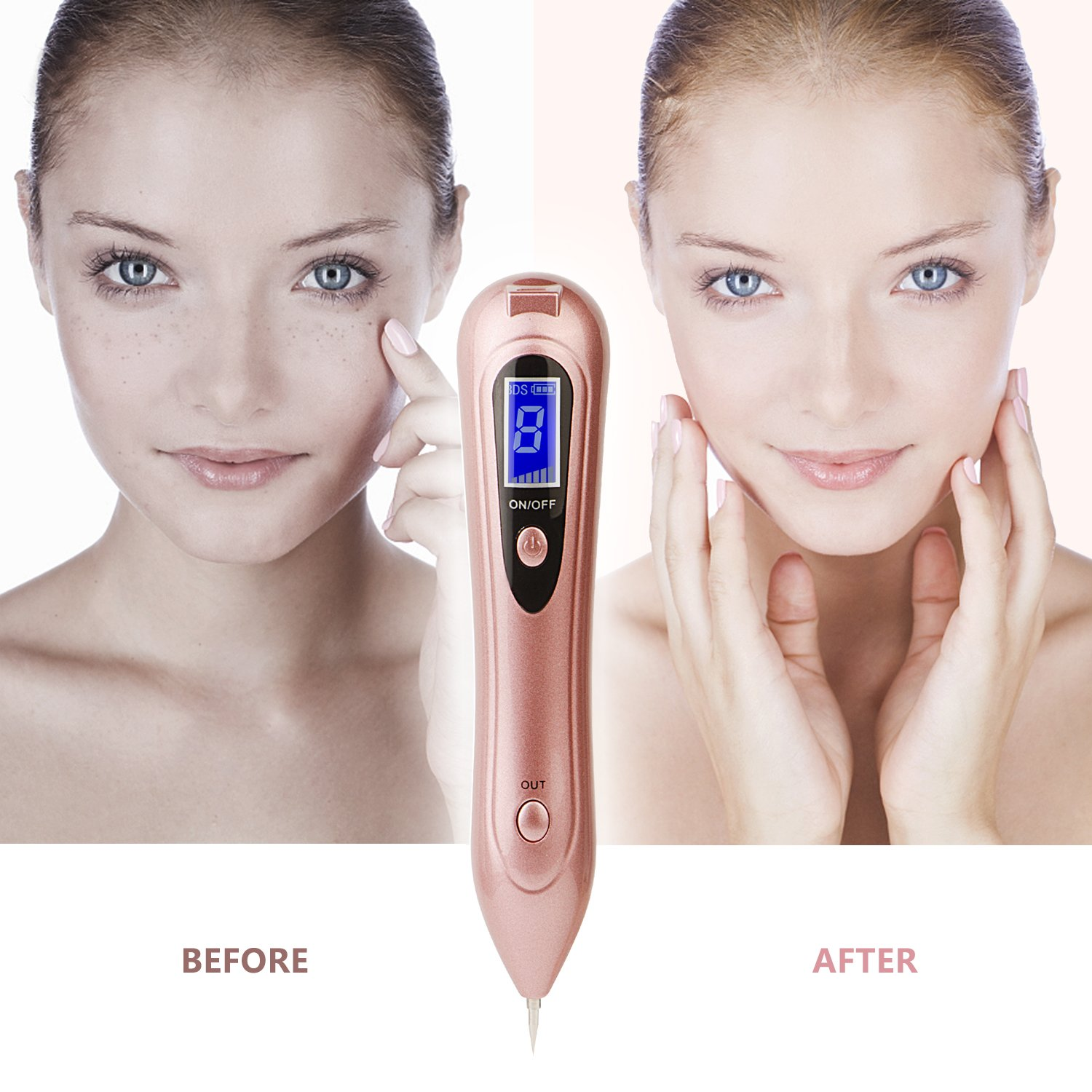 Spot Eraser Pro for Freckles, Warts, Age Spots, Tattoo, Nevus, Birthmark, Skin Pigmentation - No Bleeding & Rapid Healing, Portable Safety USB Rechargeable by Positivelife (Image #3)