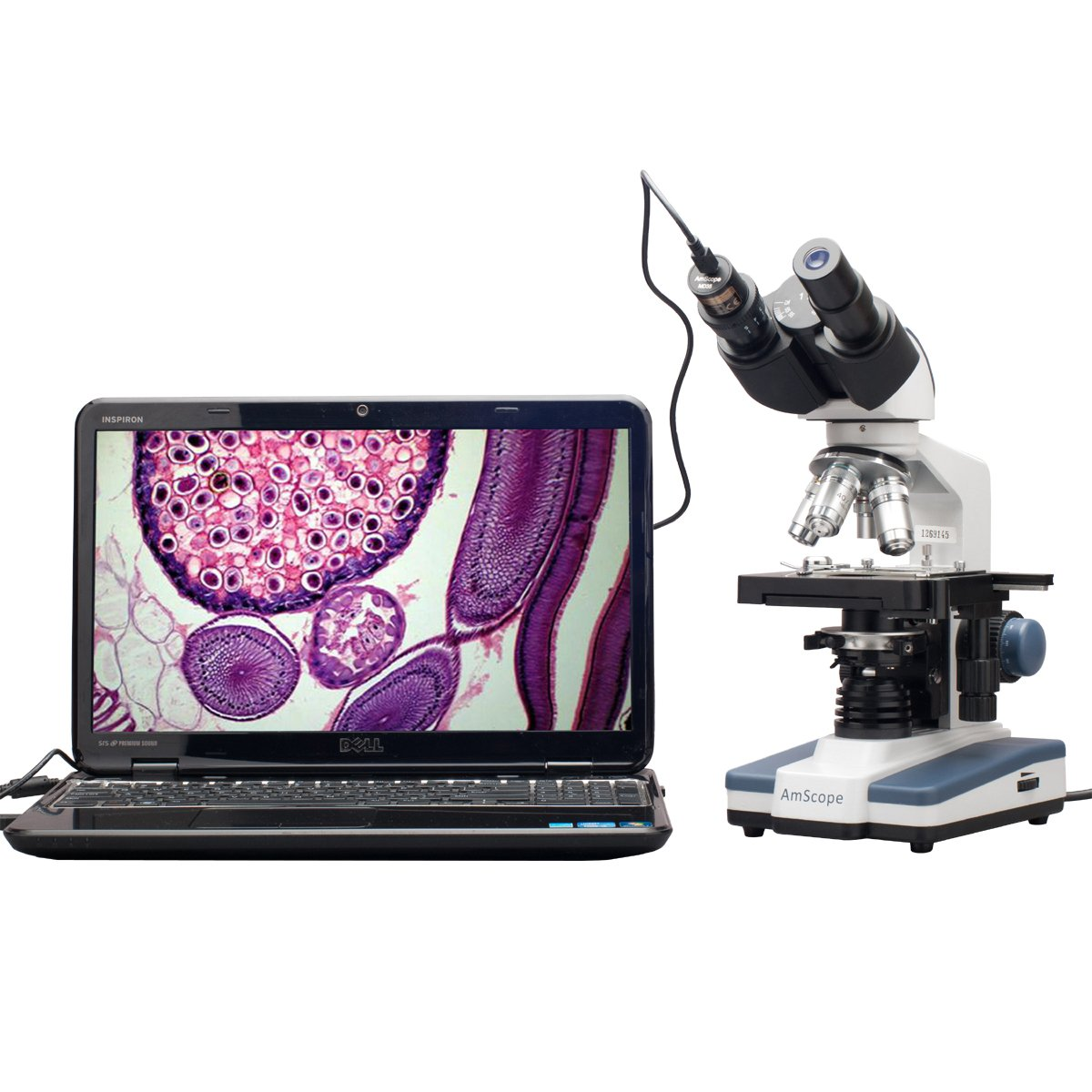 AmScope B120C-E1 Siedentopf Binocular Compound Microscope, 40X-2500X Magnification, LED Illumination, Abbe Condenser, Two-Layer Mechanical Stage, 1.3MP Camera and Software Windows XP/Vista/7/8/10 by AmScope
