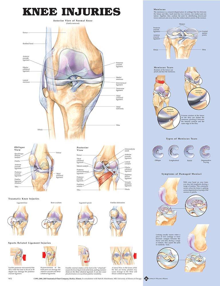 Amazon Anatomical Chart Co Human Spine Disorders Laminated
