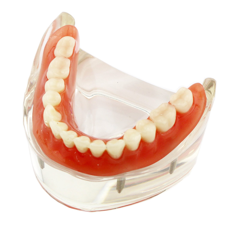 Dental Teaching teeth Model Overdenture Inferior with 4 Implants Demo #6003