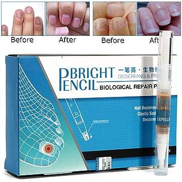 Amazon.com : Petansy Nail Repair Pen Nail Treatment Anti fungal Nail ...