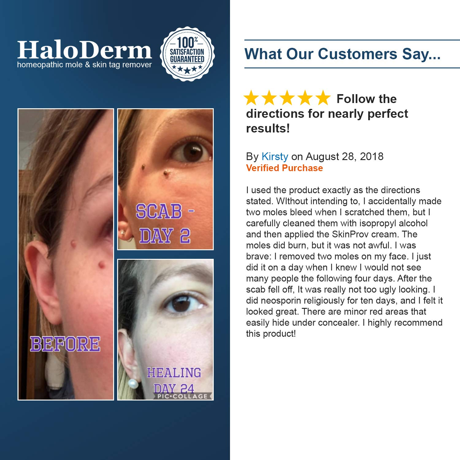 HaloDerm Advanced Skin Tag Remover & Mole Corrector - All Natural Skin Tag  Cream - Remove up to 10