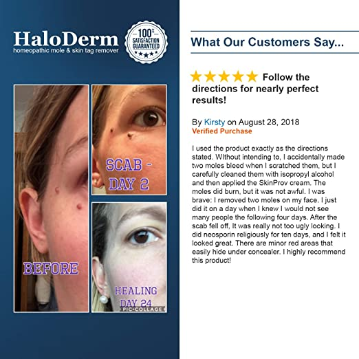 HaloDerm Skin Tag Remover & Mole Remover - All Natural Skin Tag Cream -  Remove up to 3 Skin Tags
