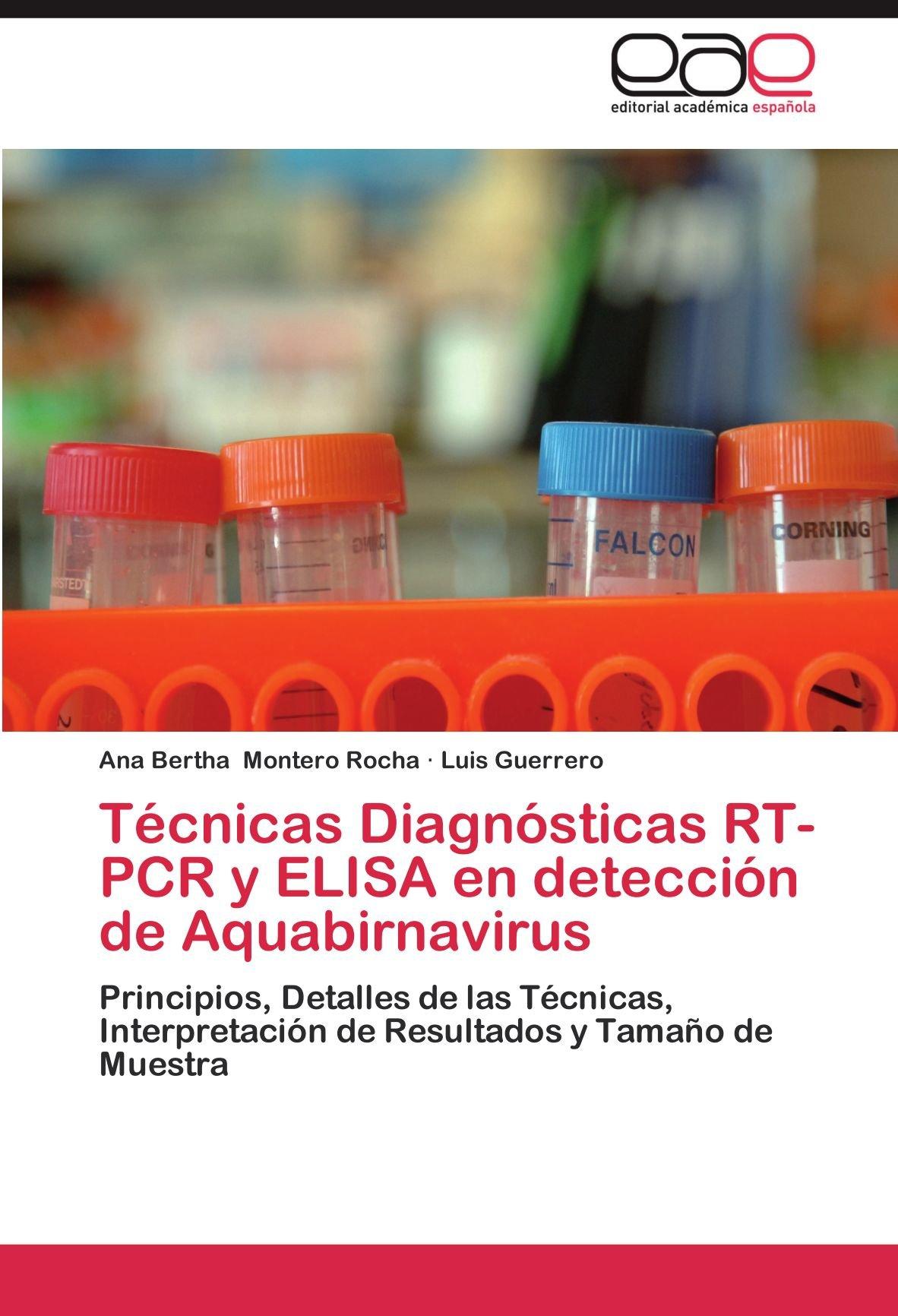 Tecnicas Diagnosticas Rt-PCR y Elisa En Deteccion de ...