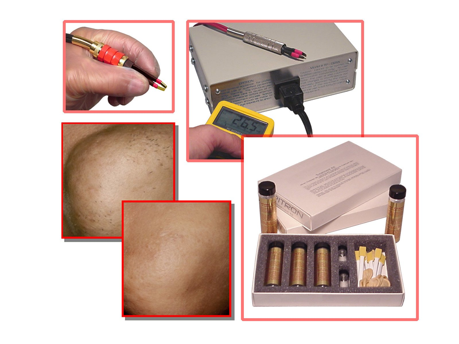 Epitron Shortwave Silver Chloride Topical Replacement for Permanent Hair Removal Machines