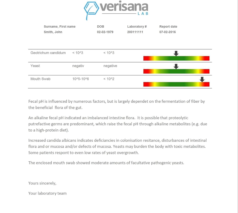 Candida prueba | Kit de pruebas de laboratorio para el diagnóstico de la Candida Albicans, levadura Infección, Candidiasis Candida, Candida Spec., ...