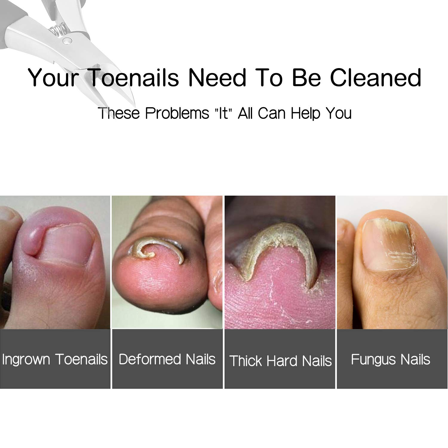 Amazon.com: Ingrown Toenail Clippers , Used for Thick Toenails ...