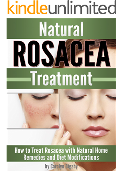 Natural Rosacea Treatment How To Treat Rosacea With Natural Home