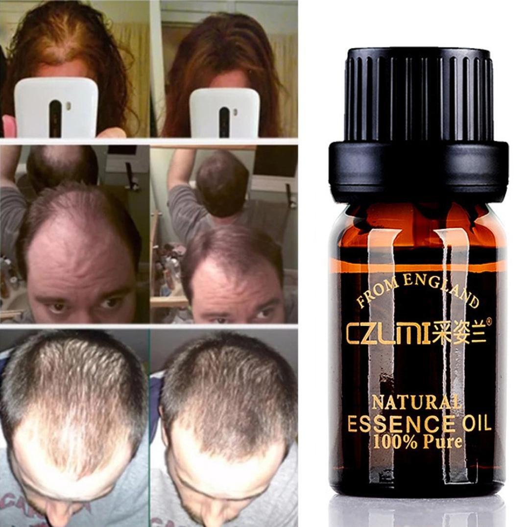Gaddrt Fast Hair Growth Dense Regrowth Essence Treatment Women Men Anti Loss Flowery