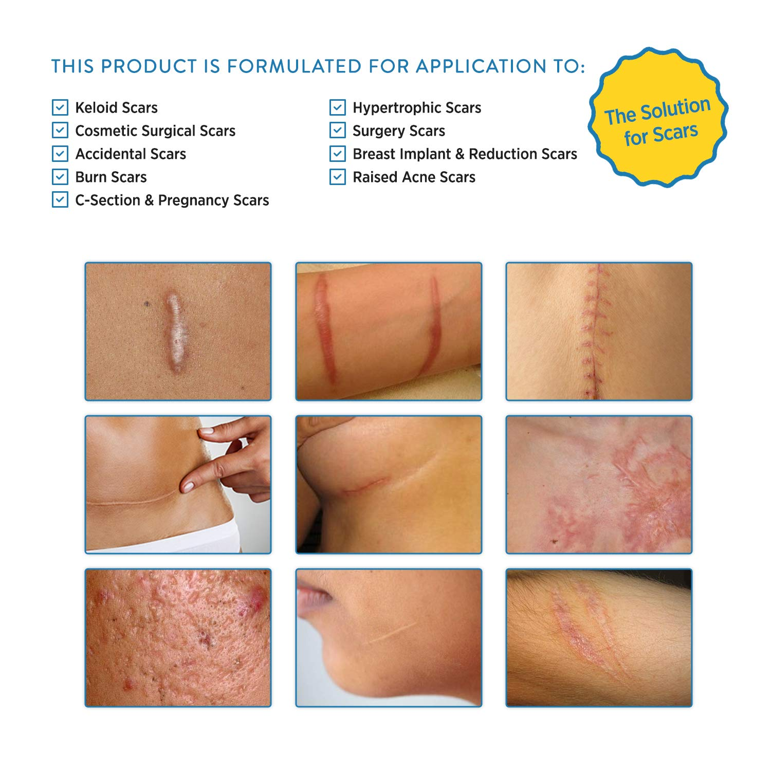 Aroamas, Silicone Scar Removal Sheets - for Keloid, C-Section,  Hypertrophic, Surgical Scars and More