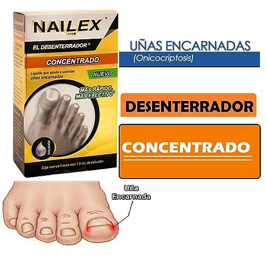 NAILEX~EL DESENTERRADOR DE UÑAS ENTERRADA Ingrown Toenail SOFTENER-SOLUTION