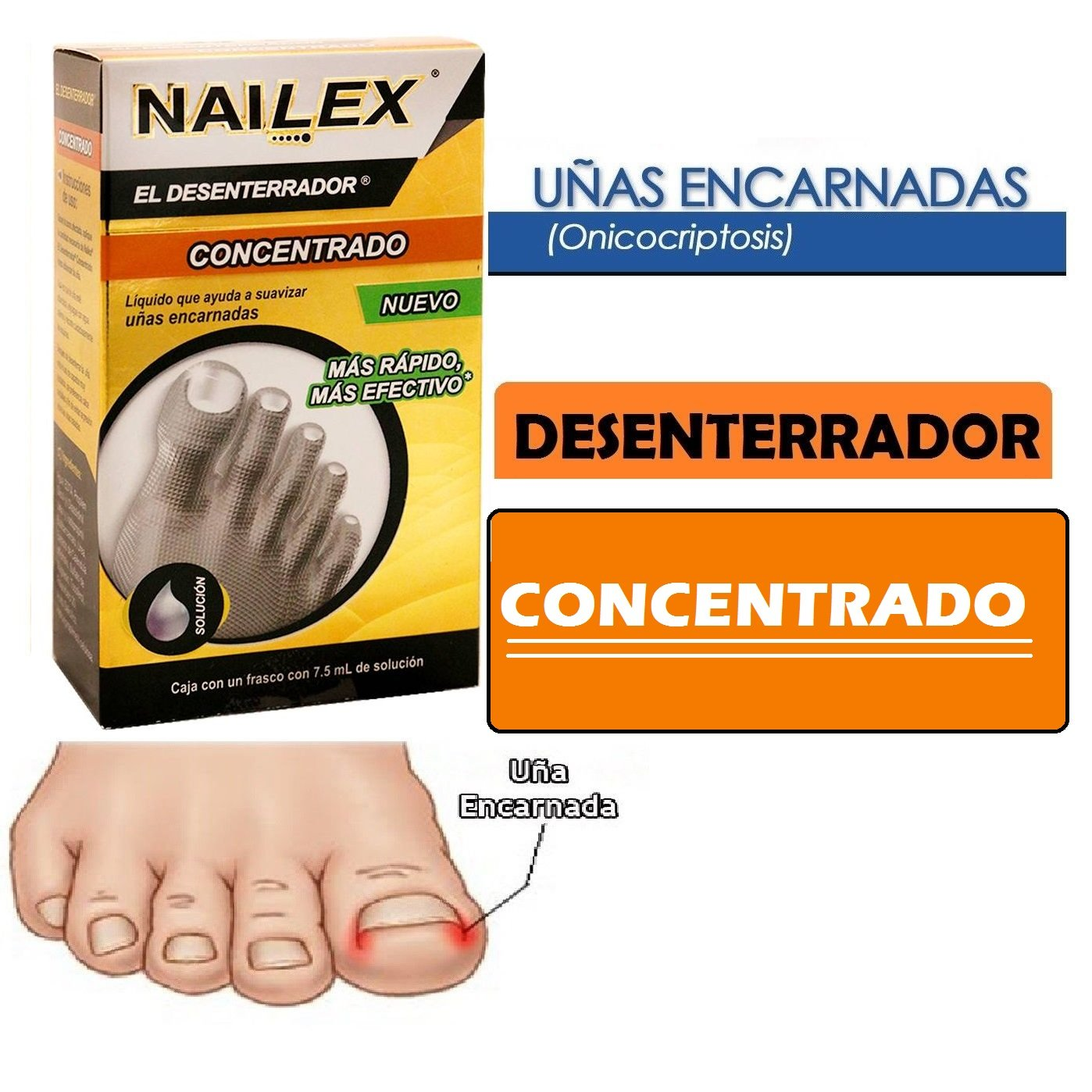 NAILEX~EL DESENTERRADOR DE UÑAS ENTERRADA Ingrown Toenail SOFTENER-SOLUTION