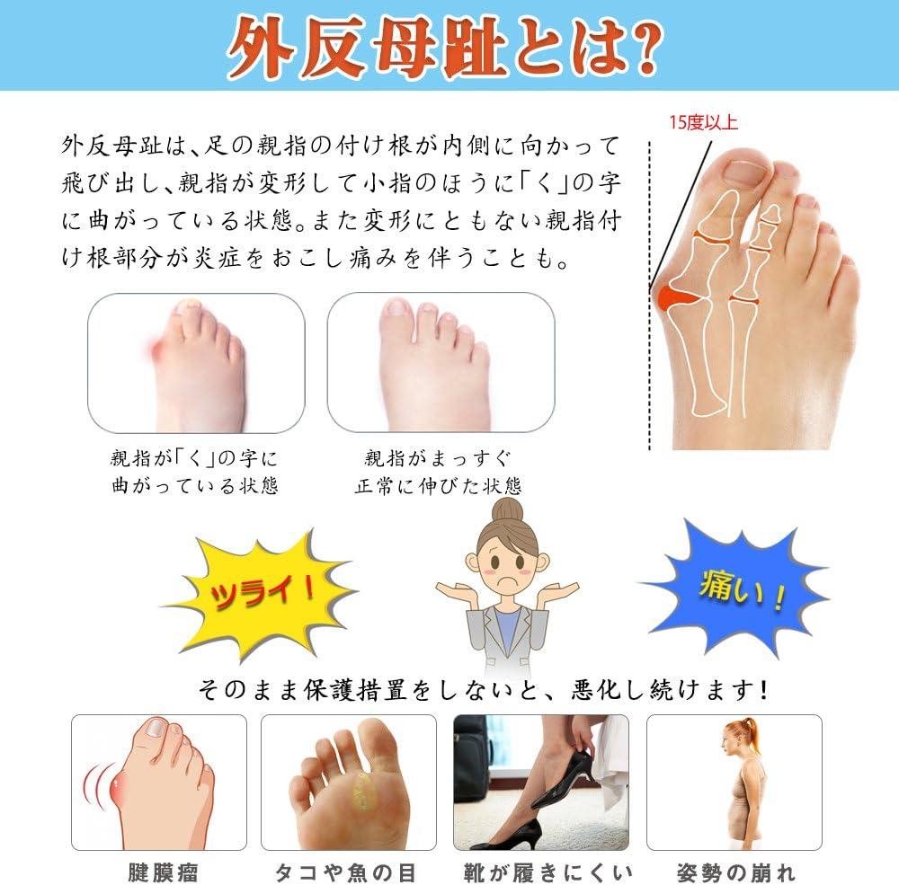 足 の 裏 指 の 付け根 痛い