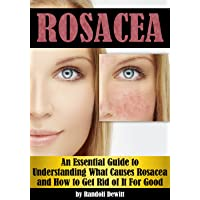 Rosacea: An Essential Guide to Understanding What Causes Rosacea and How to Get...