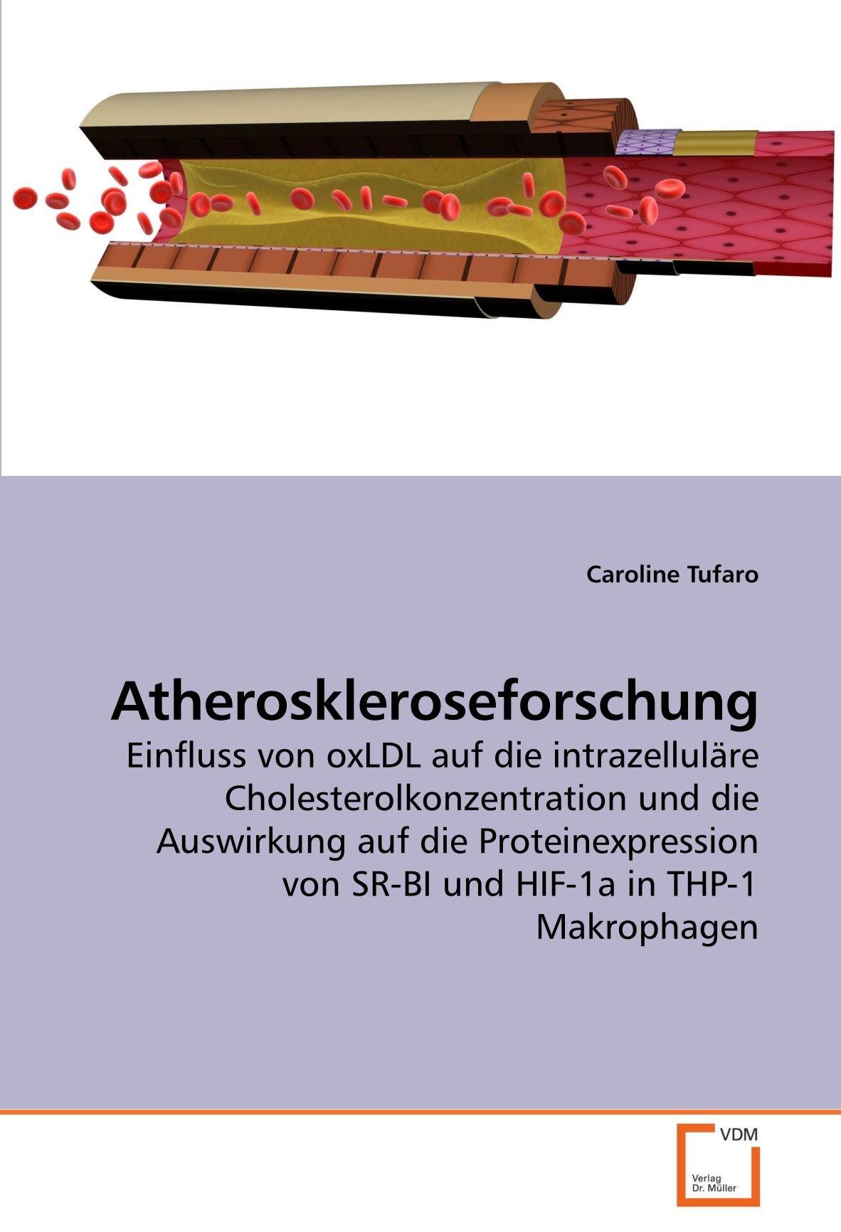 Atheroskleroseforschung: Einfluss von oxLDL auf die intrazelluläre Cholesterolkonzentration und die Auswirkung auf die Proteinexpression von SR-BI und HIF-1a in THP-1 Makrophagen (German Edition) pdf epub