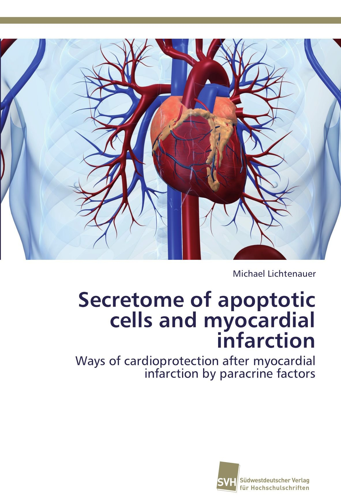 Secretome of apoptotic cells and myocardial infarction: Ways of ...