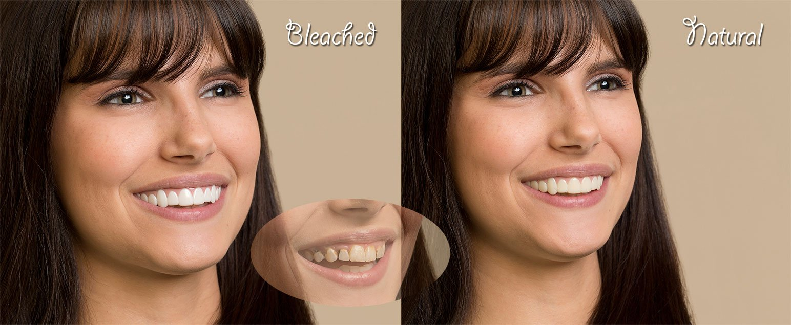 Imako Cosmetic Teeth for Women 2 Pack. (Small, Bleached) Uppers Only- Arrives Flat. Fit at Home Do it Yourself Smile Makeover! by Imako