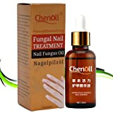Fungal Nail Treatment,Nail Antifungal Treatment,Anti-Fungal Solution,Suitable for Finger and Toe Nails,Restore Nails to Their Natural State