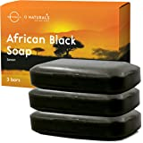 O Naturals African Black Soap Acne Problematic Skin Bar Organic Ingredients Luxurious Texture Triple Milled Bar Soap…