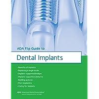 ADA Flip Guide to Dental Implants (ADA Flip Guides)
