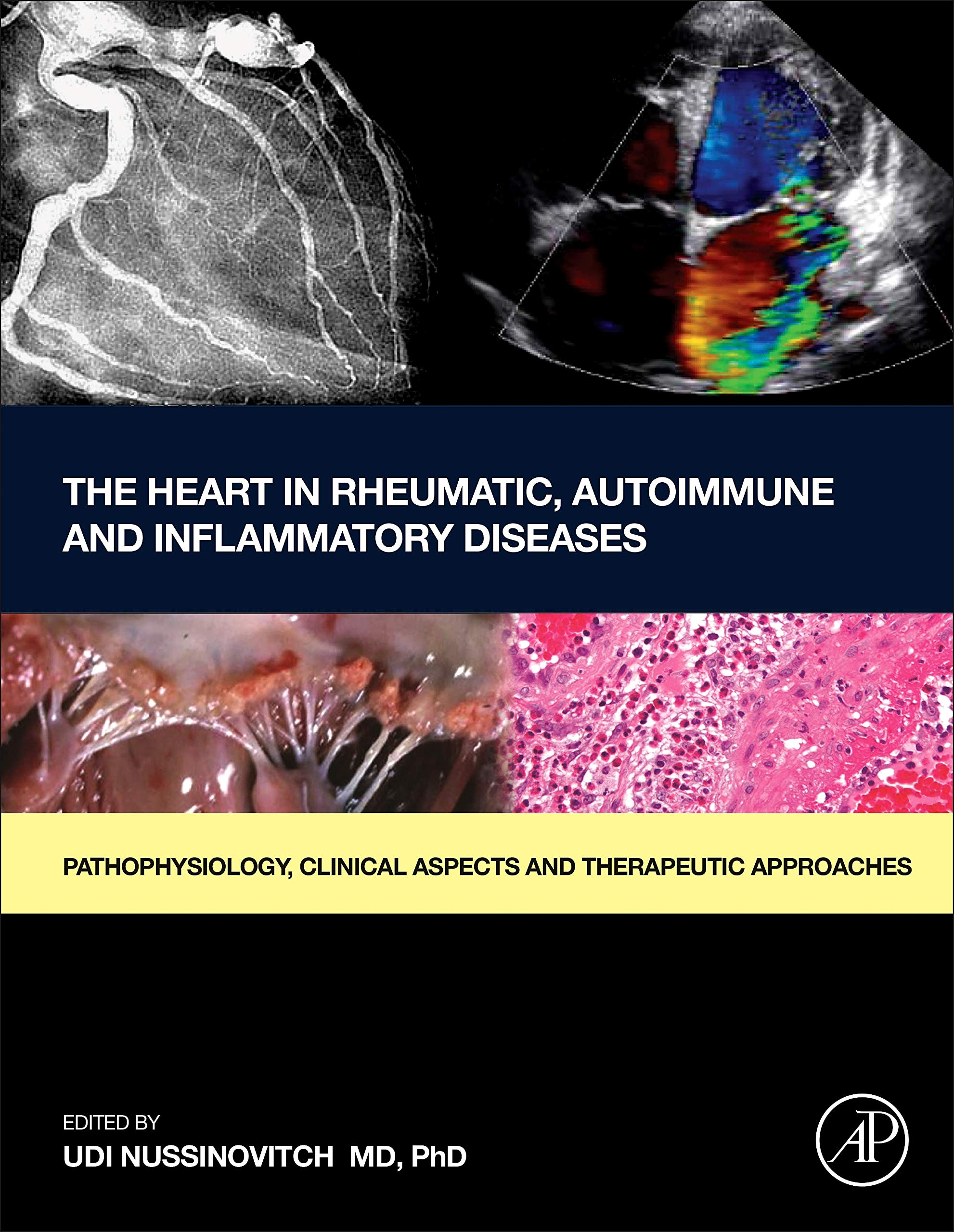 The Heart in Rheumatic, Autoimmune and Inflammatory Diseases: Pathophysiology, Clinical Aspects and Therapeutic Approaches by Academic Press