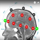 Any Cell Phone to tDCS device